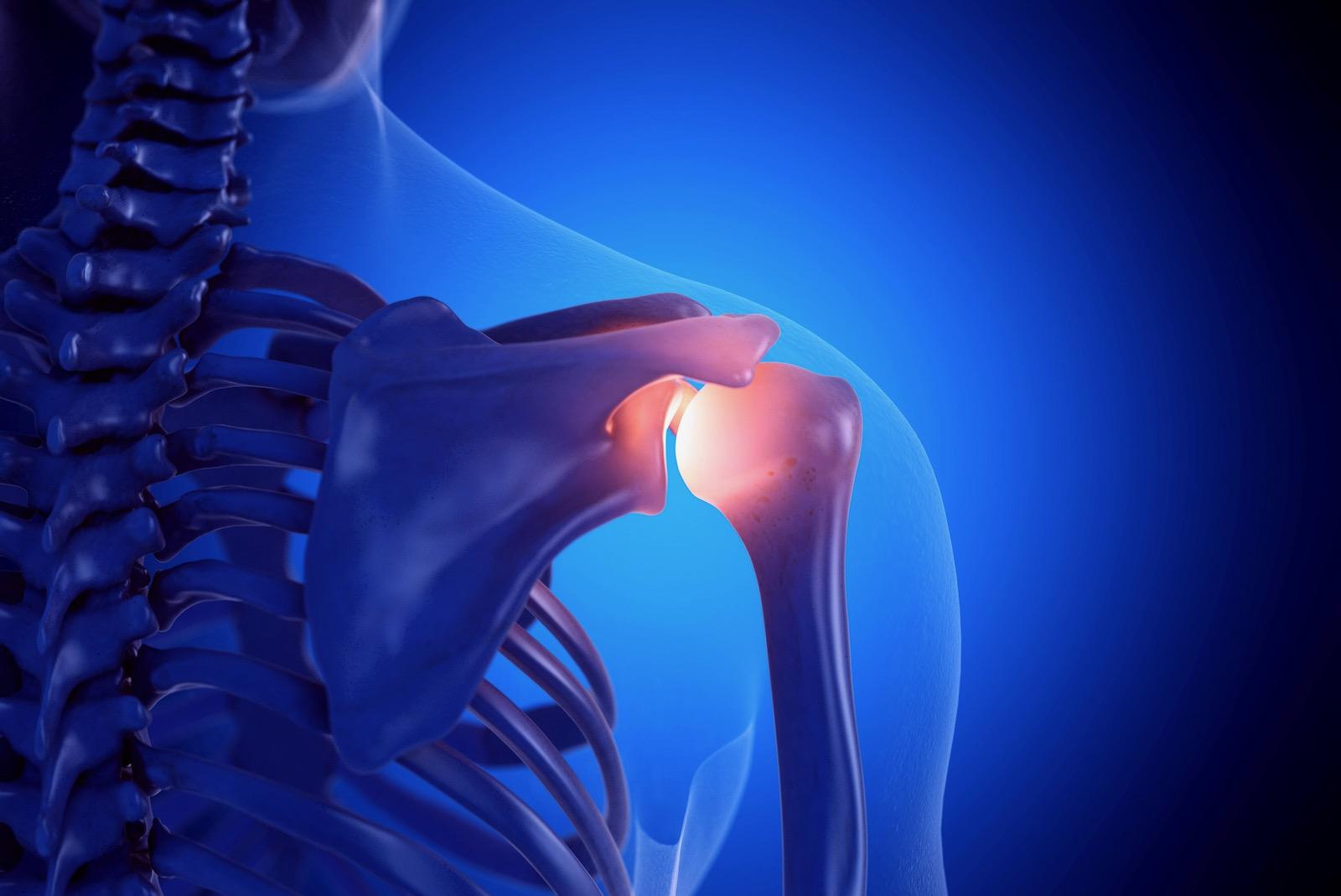 Der Einsatz von CBD bei Arthrose und Arthritis