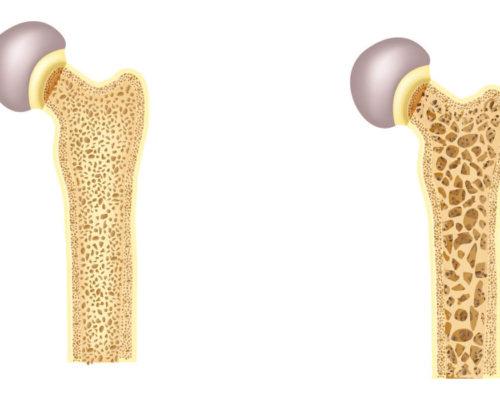 osteoporose_cbd
