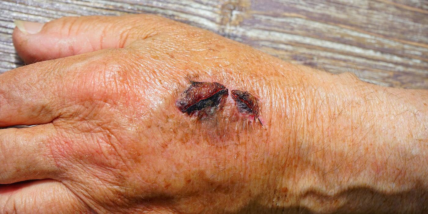 CBD bei Verletzungen